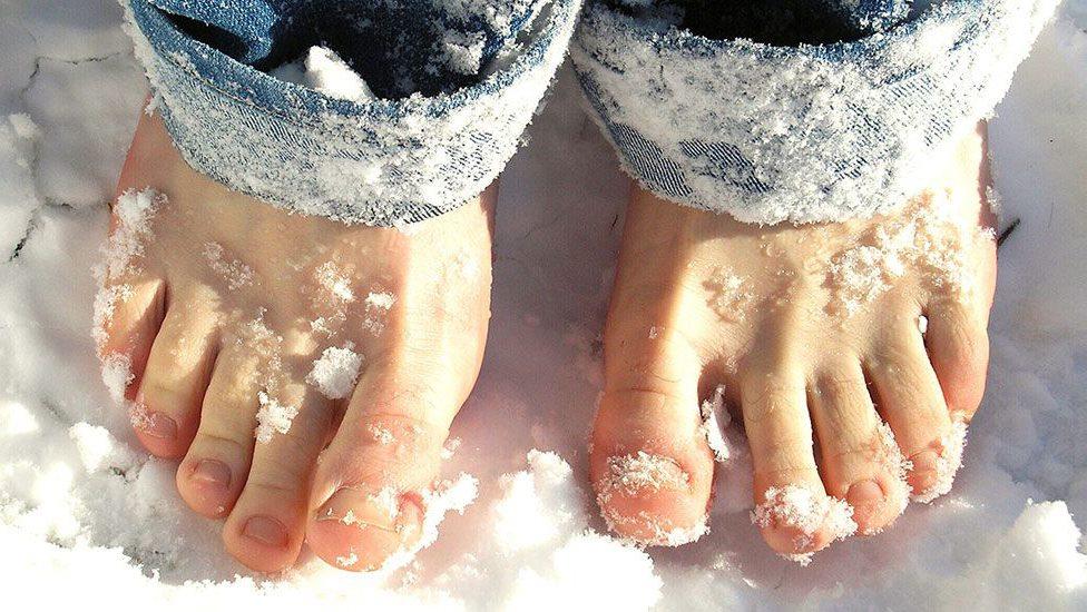Ra mồ hôi chân khi trời lạnh là do rối loạn hệ thần kinh giao cảm